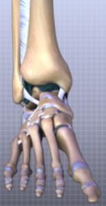 fractura de glezna