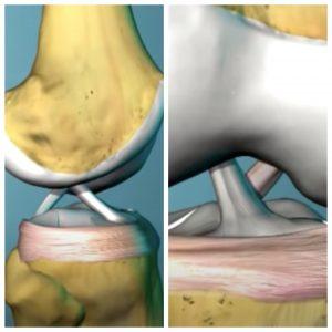 ligament incrucisat genunchi