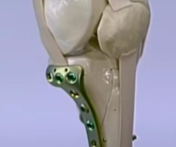 operatie fractura tibie